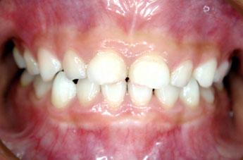 コラム・第7回 / Dr.小竹 憲雄 [二期会歯科クリニック] _c0130091_1183363.jpg