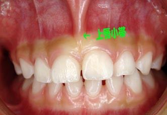 コラム・第7回 / Dr.小竹 憲雄 [二期会歯科クリニック] _c0130091_1185285.jpg