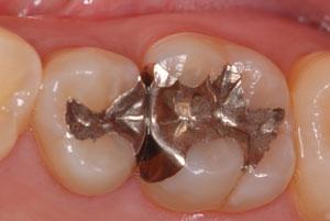 マイクロスコープがあるから出来る最小限の削らない治療。顕微鏡精密歯科治療。東京職人歯医者_e0004468_18241915.jpg