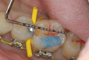 マイクロスコープがあるから出来る最小限の削らない治療。顕微鏡精密歯科治療。東京職人歯医者_e0004468_9451100.jpg