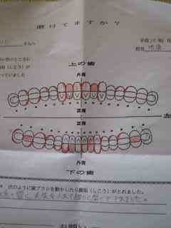 女子大生に歯を磨いてもらう。_e0143271_202156.jpg