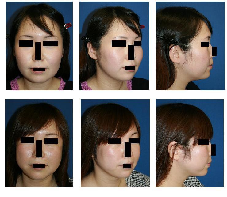 頬骨再構築法、顎下脂肪吸引_d0092965_119118.jpg