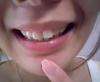 歯医者さんに行ってきましたぁ_e0114246_17131251.jpg