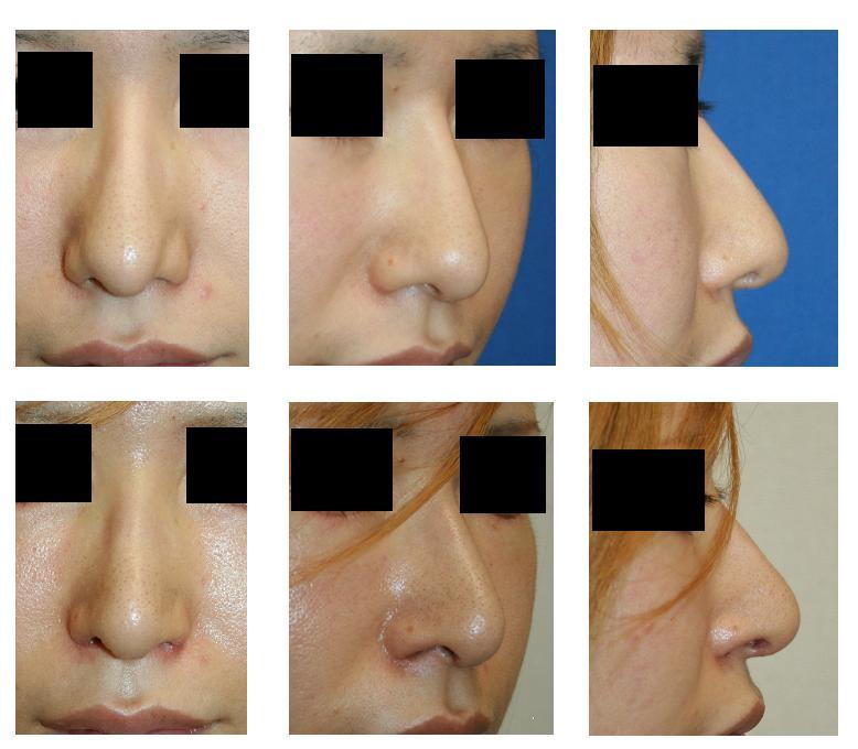 他院修正:鼻プロテーゼ入れ替え術、鼻先肉厚減幅術、鼻尖縮小術、鼻孔縁挙上術_d0092965_19564428.jpg