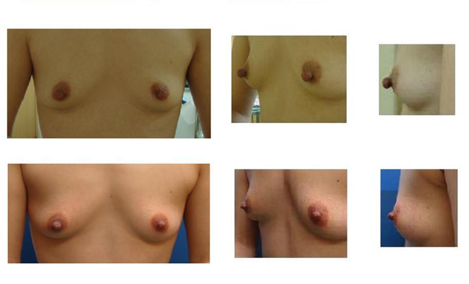 乳頭縮小術 :若先生_d0092965_23304432.jpg