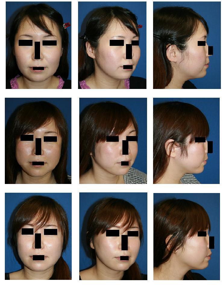 頬骨再構築法、顎まわり~顎下脂肪吸引_d0092965_23191964.jpg