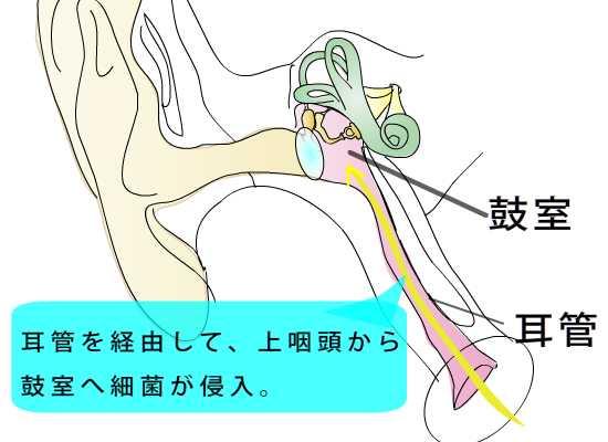 耳鼻科医のお絵かき〜急性中耳炎〜_e0084756_1244495.jpg