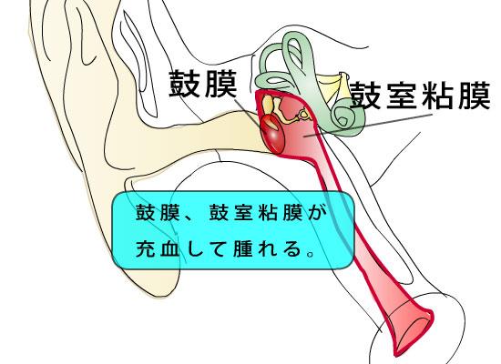 耳鼻科医のお絵かき〜急性中耳炎〜_e0084756_152038.jpg