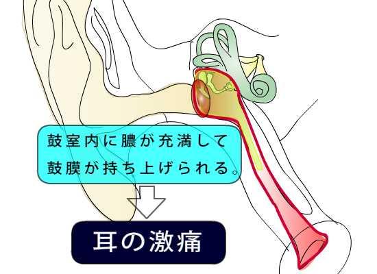 耳鼻科医のお絵かき〜急性中耳炎〜_e0084756_1549214.jpg