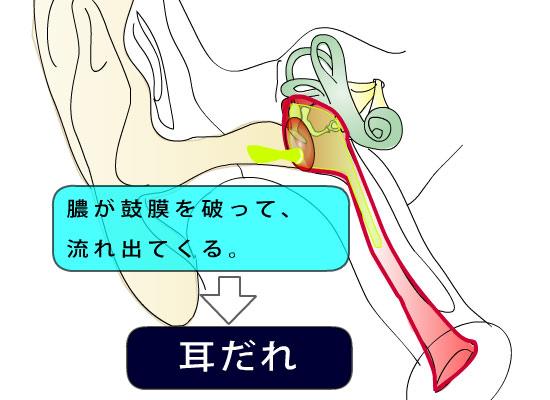 耳鼻科医のお絵かき〜急性中耳炎〜_e0084756_1557289.jpg