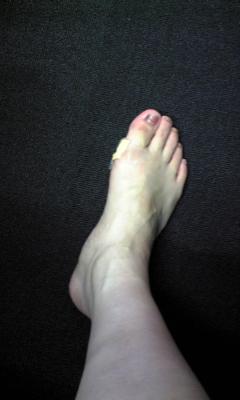 靴づれ痛い(:_;)_e0114246_14134999.jpg