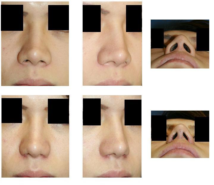小鼻縮小術、鼻孔縁挙上術_d0092965_23135065.jpg