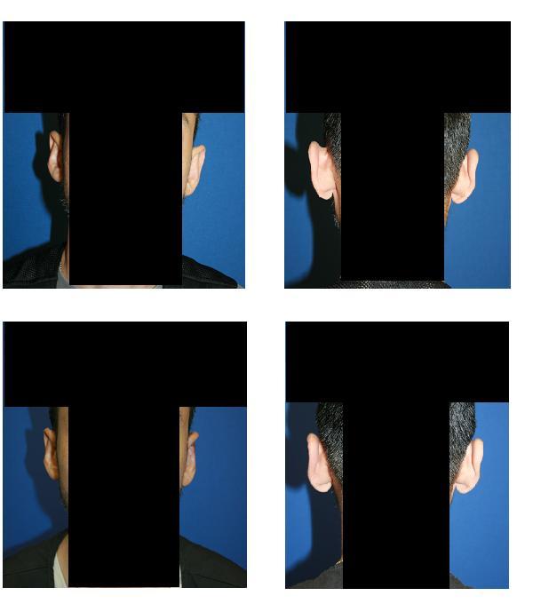 左耳 立ち耳修正術(クローズ法)_d0092965_21594083.jpg