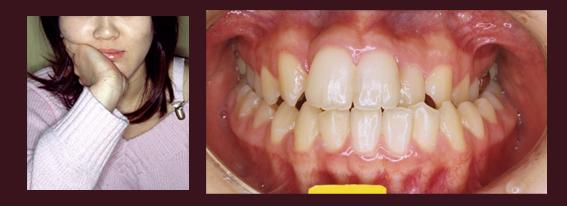 コラム・第10回 / Dr.正木 史洋 [二期会歯科クリニック]_c0130091_9343950.jpg