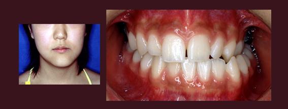コラム・第10回 / Dr.正木 史洋 [二期会歯科クリニック]_c0130091_935277.jpg