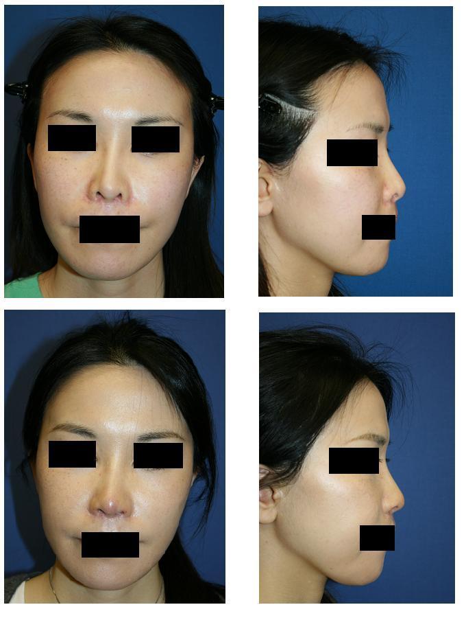 鼻孔縁下降術(鼻孔縁延長術)、鼻尖部軟骨移動術_d0092965_04274.jpg