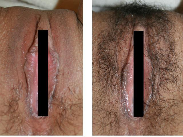 他院修正:小陰唇縮小形成術、陰核包皮縮小形成術_d0092965_0205534.jpg