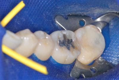 ラバーダム防湿法の現状 日本では標準的治療を受けるのは困難か。東京マイクロスコープ顕微鏡歯科治療_e0004468_113023.jpg
