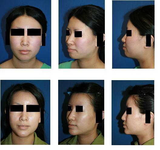 鼻プロテーゼ留置術、小鼻縮小術、鼻翼基部プロテーゼ、顎プロテーゼ、額アパタイト形成術_d0092965_0304627.jpg