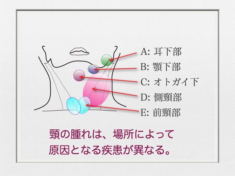 頸の腫れ〜部位別に考えられる疾患〜_e0084756_8125922.jpg