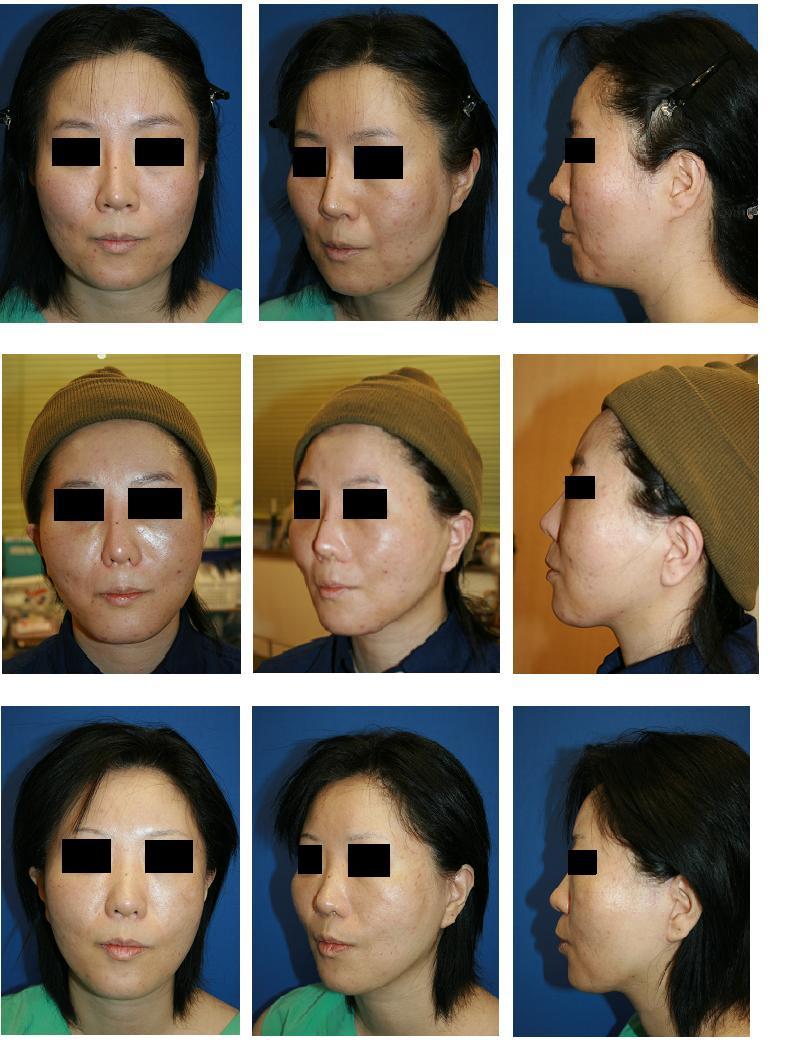 ロアーリフト、顔面および顎下脂肪吸引術、小鼻縮小術_d0092965_2142621.jpg