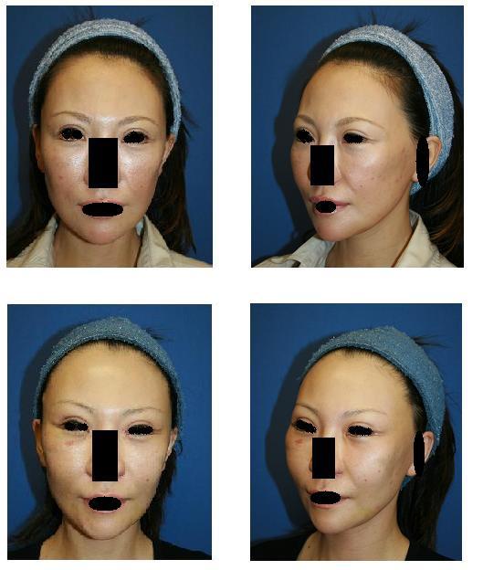 ミッドフェイスリフト(エンドタイン ミッドフェイスST使用)、側頭部リフト、頬骨前方削り_d0092965_22593464.jpg