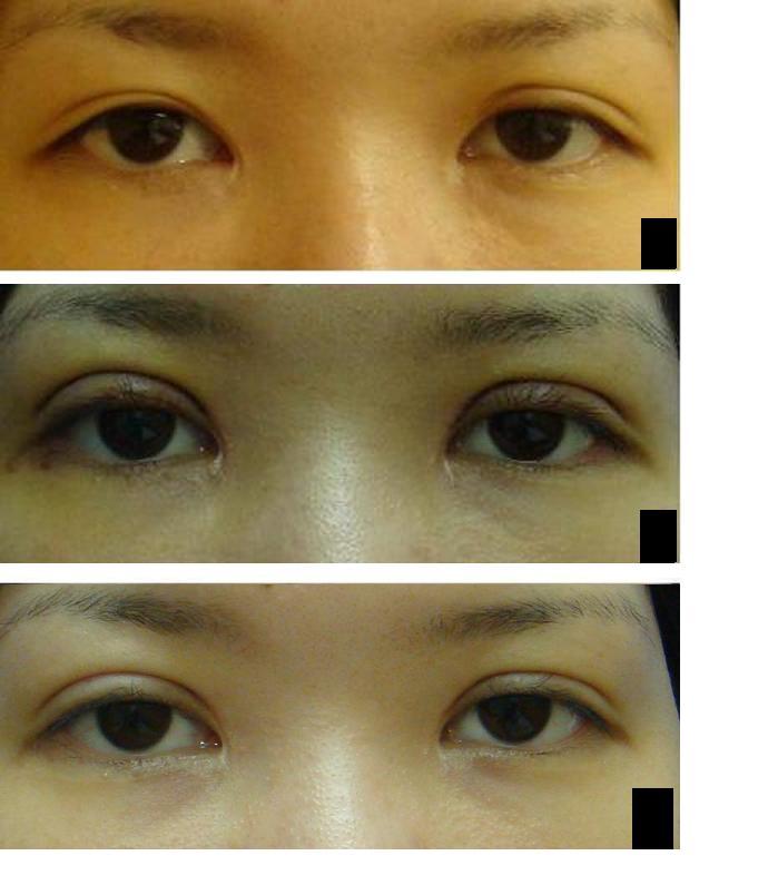 両目たるみ取り、上眼瞼脂肪摘出術(若先生)_d0092965_239257.jpg