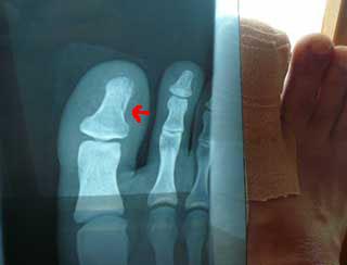 あまやん足の爪が割れて指を骨折_b0054727_0375496.jpg