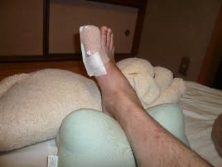 あまやん足の爪が割れて指を骨折_b0054727_0421862.jpg