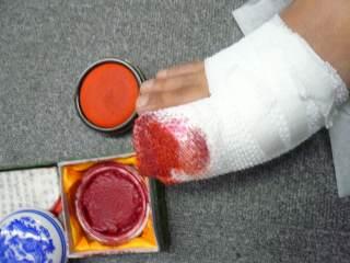 怪我を活用したイタズラ_b0054727_90569.jpg