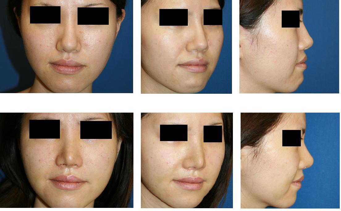 鼻翼基部プロテーゼ(ほうれい線プロテーゼ)、鼻尖縮小(クローズ法)_d0092965_2332598.jpg