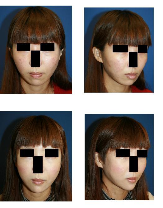 頬骨再構築法、顎プロテーゼ留置術_d0092965_2303268.jpg