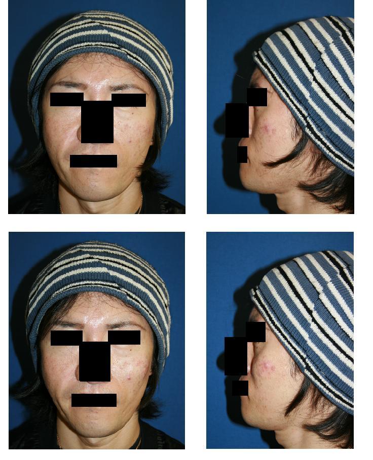 頬骨前方形成術( ヒアルロン酸 )_d0092965_054833.jpg