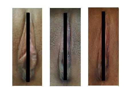 画像 小陰唇縮小 小陰唇縮小・クリトリス包茎修正手術 キャプチャ(写真)解説
