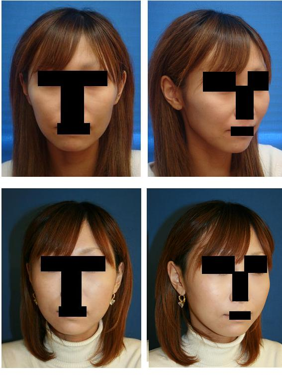 頬骨再構築法_d0092965_1455295.jpg