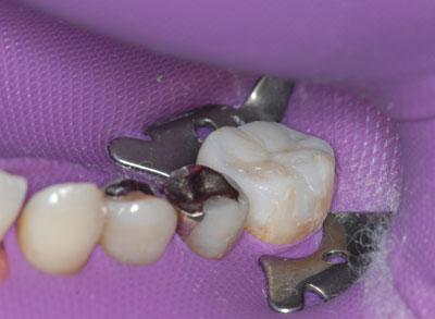 左側下顎第一大臼歯インレー修復 東京職人歯医者_e0004468_722411.jpg