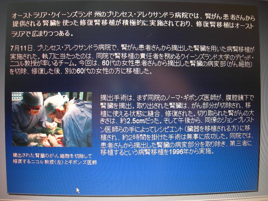 第42回日本臨床腎移植学会 光畑直喜医師発表要旨_e0163726_13145799.jpg