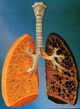 7.タバコと病気(3)COPD_d0128520_856509.jpg