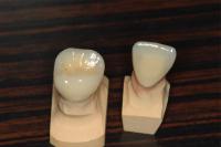 当オフィスは全て半調節性咬合器(独製Kavo evo7)を用いた治療である。東京職人歯医者_e0004468_19313635.jpg