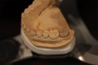 当オフィスは全て半調節性咬合器(独製Kavo evo7)を用いた治療である。東京職人歯医者_e0004468_19315282.jpg