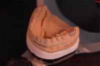 当オフィスは全て半調節性咬合器(独製Kavo evo7)を用いた治療である。東京職人歯医者_e0004468_1932366.jpg