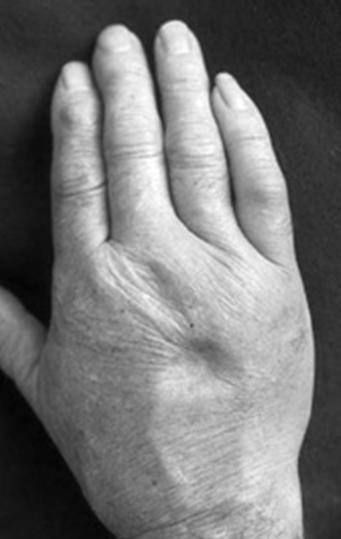 RS3PE症候群 : 呼吸器内科医