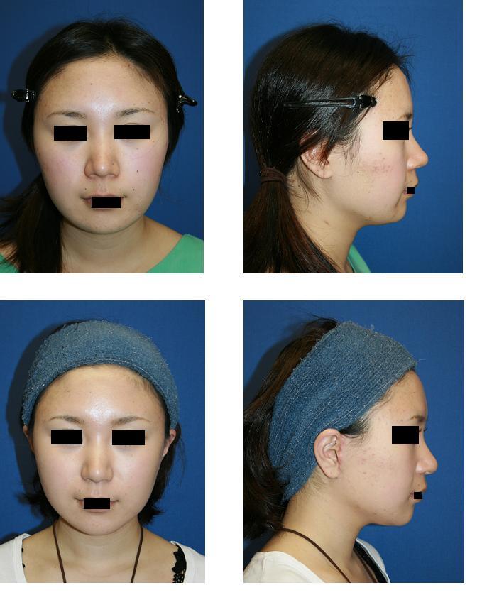 頬骨再構築法、フェイスリフト 、小鼻縮小術、他院術後鼻先修正、術後約1年_d0092965_22211952.jpg