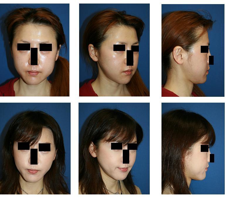顔面脂肪吸引_d0092965_0225177.jpg