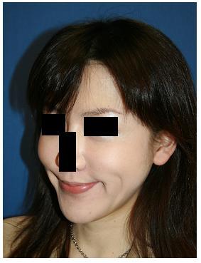 顔面脂肪吸引_d0092965_02958.jpg