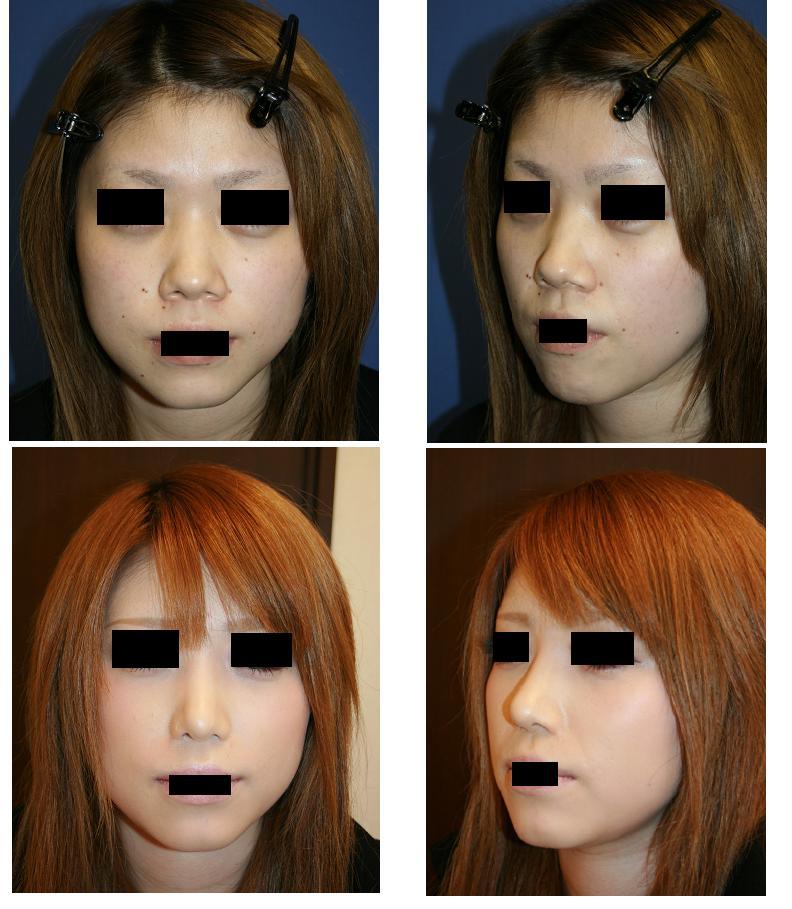 鼻口唇角形成術、小鼻縮小術、鼻尖縮小術、ハイブリッドプロテーゼ留置術、ホクロ切除術_d0092965_029166.jpg