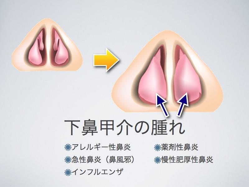 下鼻甲介の腫れ_e0084756_1352137.jpg