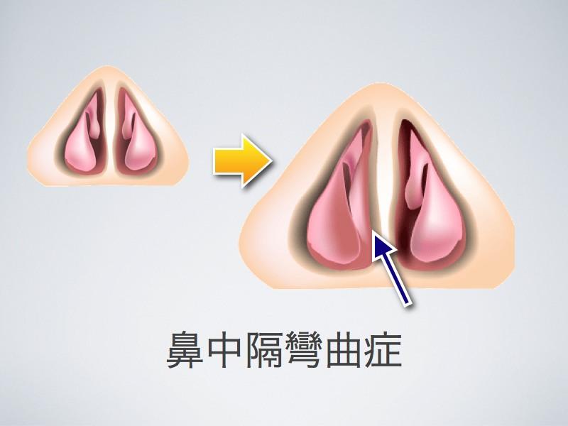 鼻中隔彎曲症_e0084756_8561833.jpg
