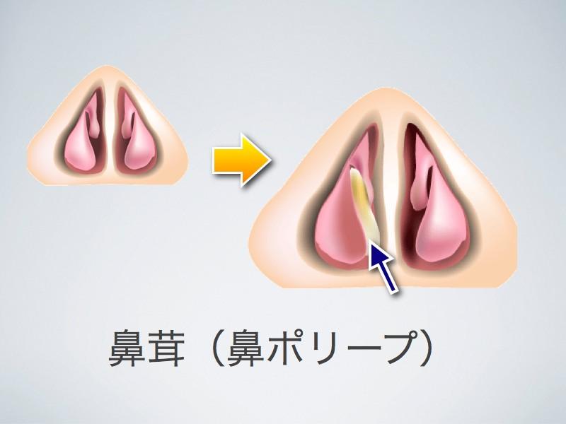 鼻茸・鼻ポリープ_e0084756_8404170.jpg