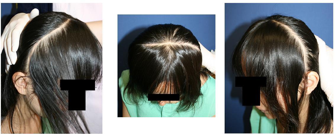 美容形成外科後遺症:頬骨アーチリダクション術後    頭部の冠状切開傷痕_d0092965_3424836.jpg